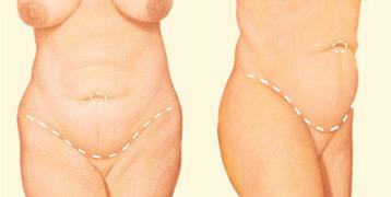 Antes de una abdominoplastia: la incisión se coloca sobre el área púbica para permitir extirpar el exceso de piel y grasa
