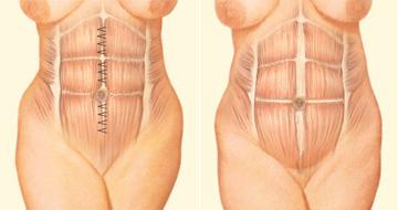 Antes de la abdominoplastia: musculatura de la pared abdominal. | La musculatura y la pared abdominal son aproximados para conseguir una cintua más estrecha y larga.