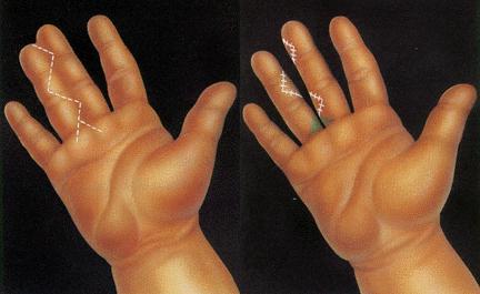 Caída de después hinchada la mano dolorosa y