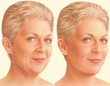 Las incisiones suelen colocarse en pelo, delante de la oreja y detrás de esta. El tejido de la cara y del cuello y la musculatura son separados para conseguir un estiramiento adecuado. Resultado