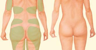 Las mujeres pueden someterse a una liposucción en la región de la papada, caderas, muslos, abdomen, debajo de los brazos y alrededor de la mama. | Resultado tras una liposucción.