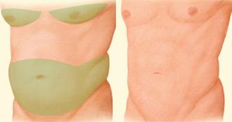 Los hombres pueden someterse a una liposucción en la papada y alrededor de las caderas, también se emplea para reducier el pecho aumentado, condición conocida como ginecomastia. | Resultado tras una liposucción.