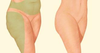 Los pacientes sanos sin sobrepeso, con excesos localizados de grasa y piel elástica, son los mejores candidatos para una liposucción