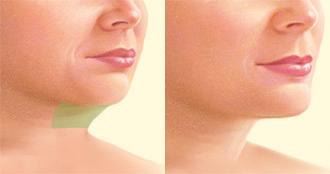 El cirujano introduce cánulas huecas a través de pequeñas incisiones en la piel. | Los resultados se hacen aparentes pasadas 6 semanas cuando la mayoría de la inflamación ha desaparecido.