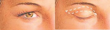 Párpados superiores: Aspecto preoperatorio. | El exceso de grasa así como el exceso de piel, serán eliminados durante la cirugía.